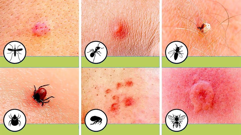 Kako se zaštiti od uboda insekata 19843